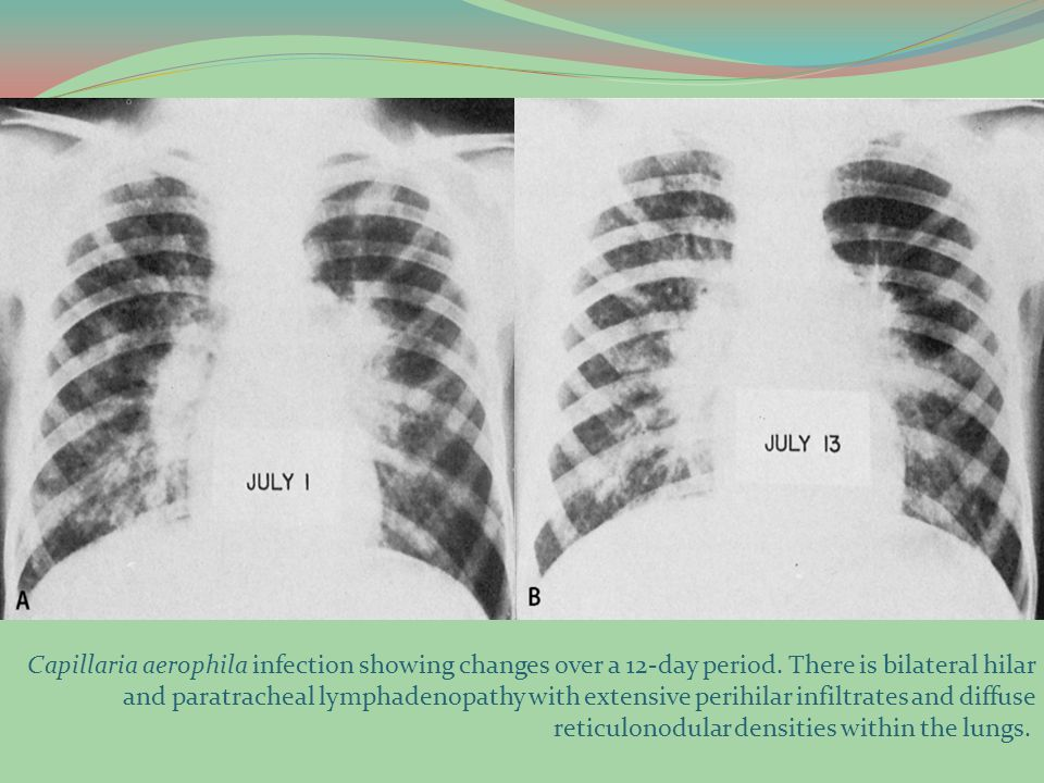 Capillaria aerophila infection showing changes over a 12-day period. There is bilateral hilar and paratracheal lymphadenopathy with extensive perihila