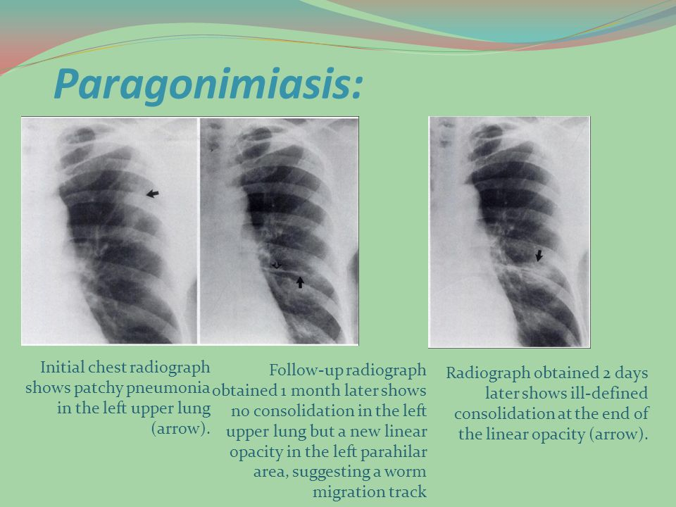 Paragonimiasis: Initial chest radiograph shows patchy pneumonia in the left upper lung (arrow).