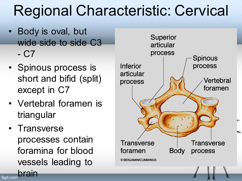 Regional Characteristic: Cervical Body is oval, but wide side to side C3 - C7 Spinous process is short and bifid (split) except in C7 Vertebral forame