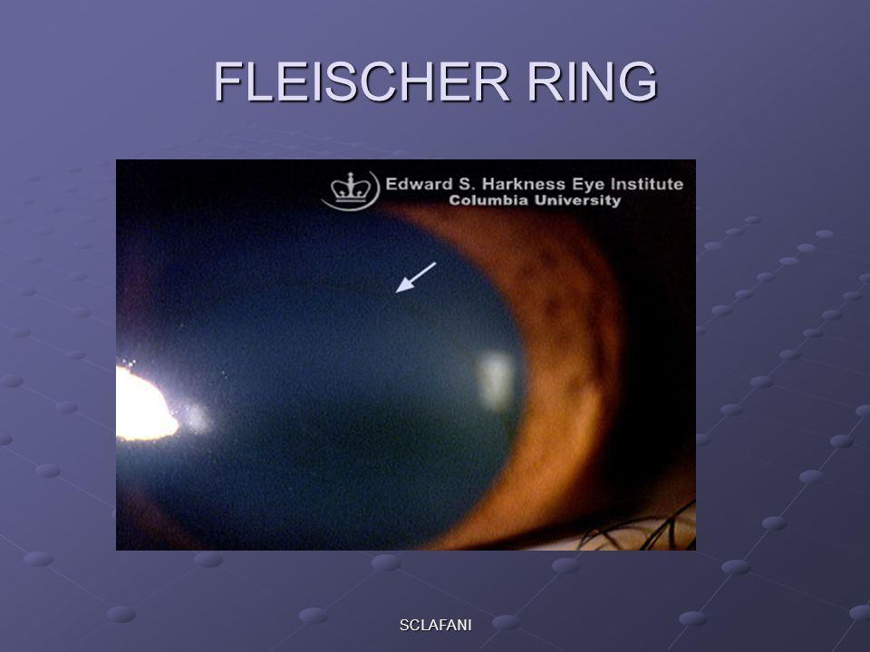 SCLAFANI FLEISCHER RING