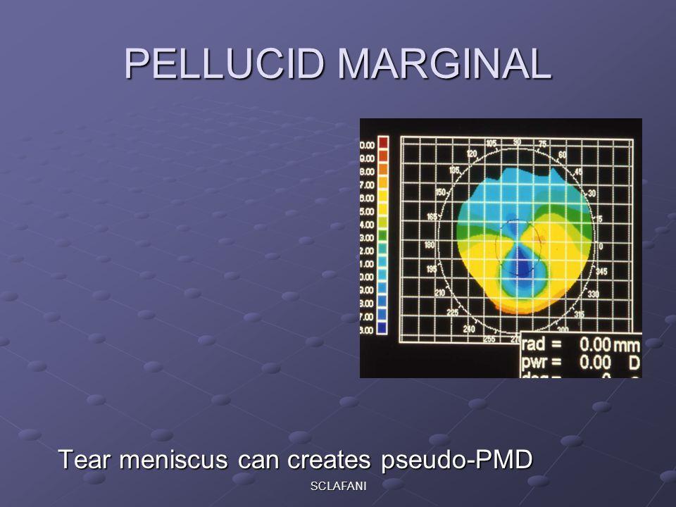 SCLAFANI PELLUCID MARGINAL Tear meniscus can creates pseudo-PMD