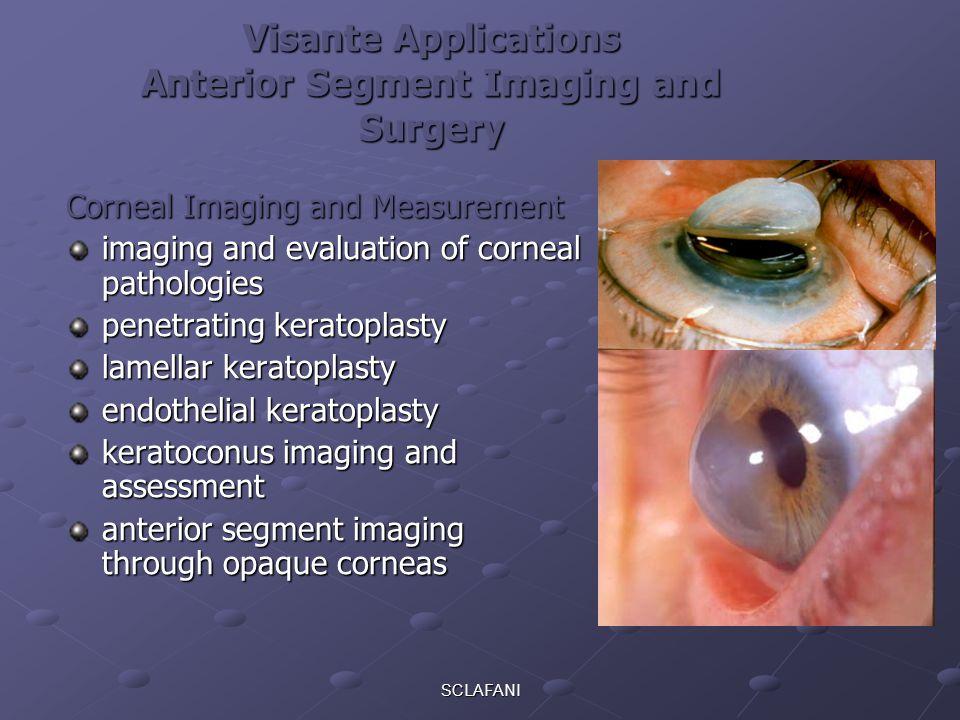 SCLAFANI Visante Applications Anterior Segment Imaging and Surgery Corneal Imaging and Measurement imaging and evaluation of corneal pathologies penet