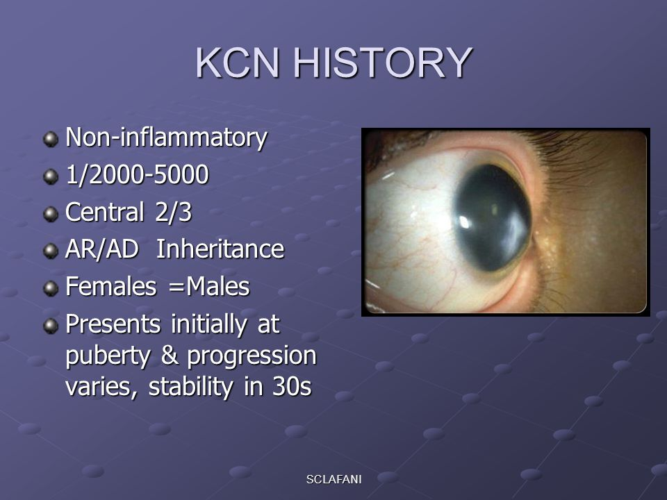 SCLAFANI KCN HISTORY Non-inflammatory1/2000-5000 Central 2/3 AR/AD Inheritance Females =Males Presents initially at puberty & progression varies, stability in 30s