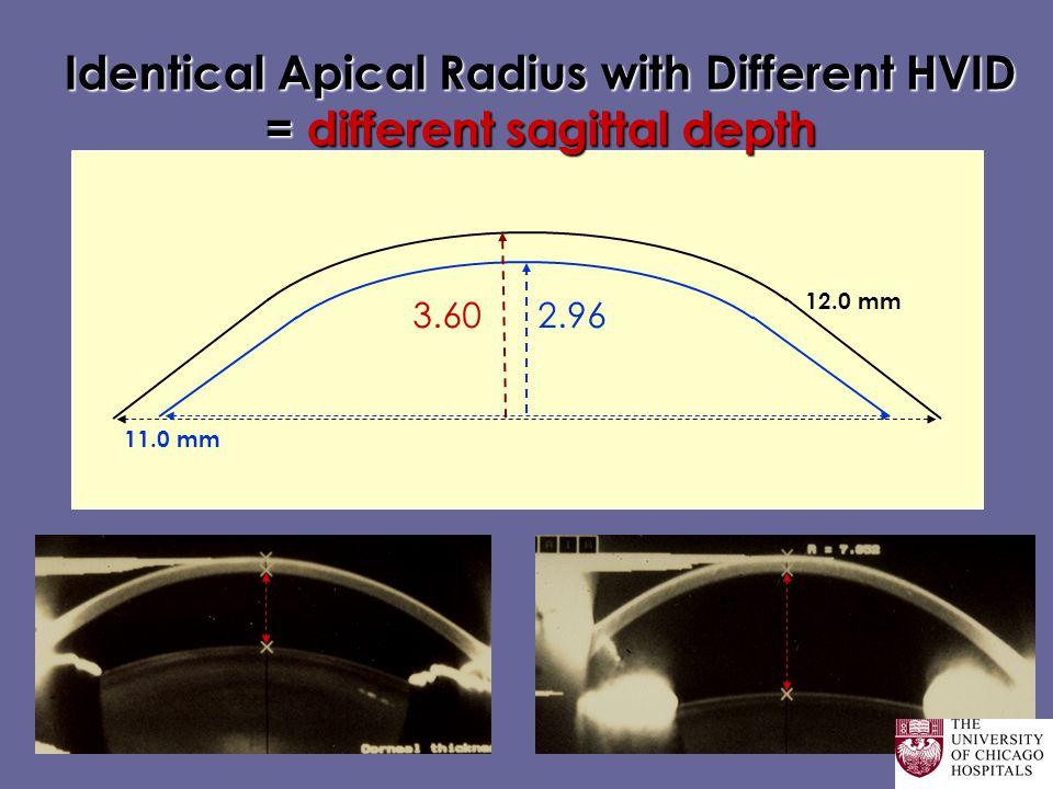 Identical Apical Radius with Different HVID = different sagittal depth 11.0 mm 12.0 mm 3.602.96