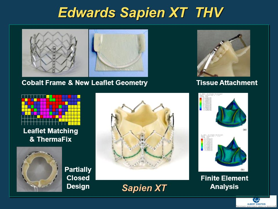 Edwards Sapien XT THV Cobalt Frame & New Leaflet Geometry Tissue Attachment Leaflet Matching & ThermaFix Finite Element Analysis Partially Closed Design Sapien XT