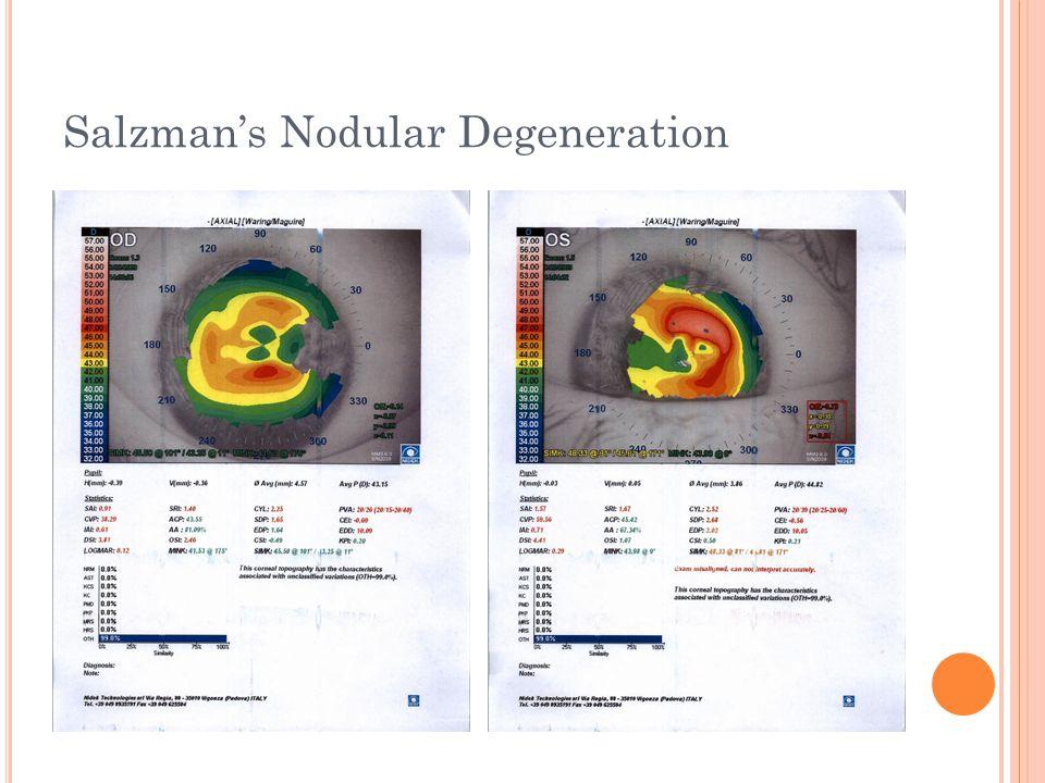 Salzman's Nodular Degeneration