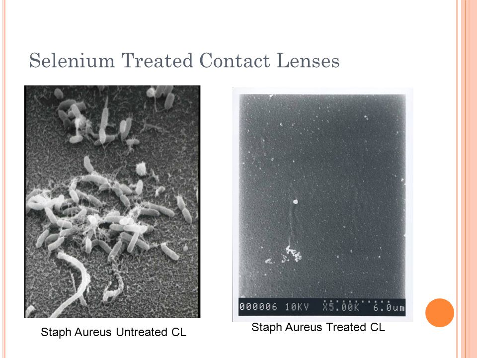 Selenium Treated Contact Lenses Staph Aureus Untreated CL Staph Aureus Treated CL