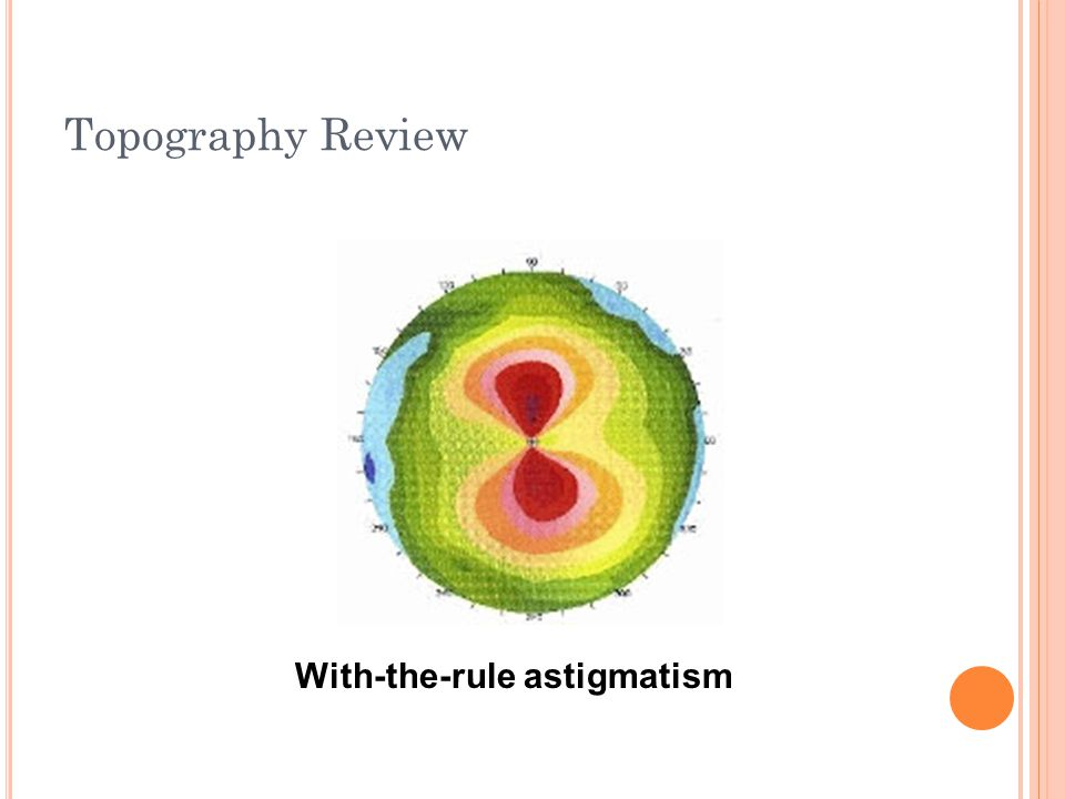 Topography Review Against-the-rule astigmatism