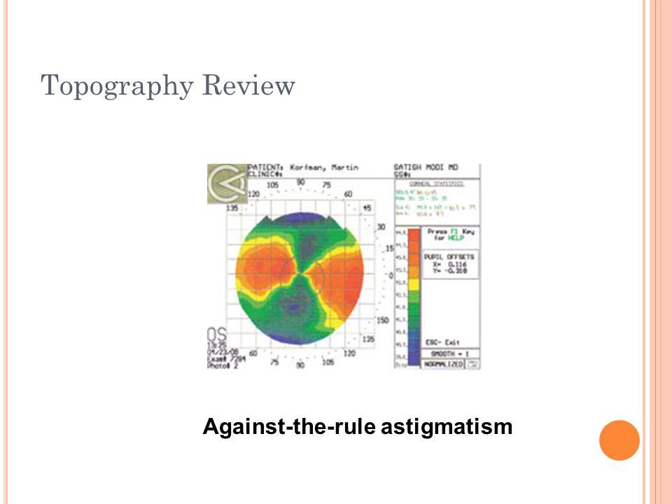 Topography Review Normal Cornea