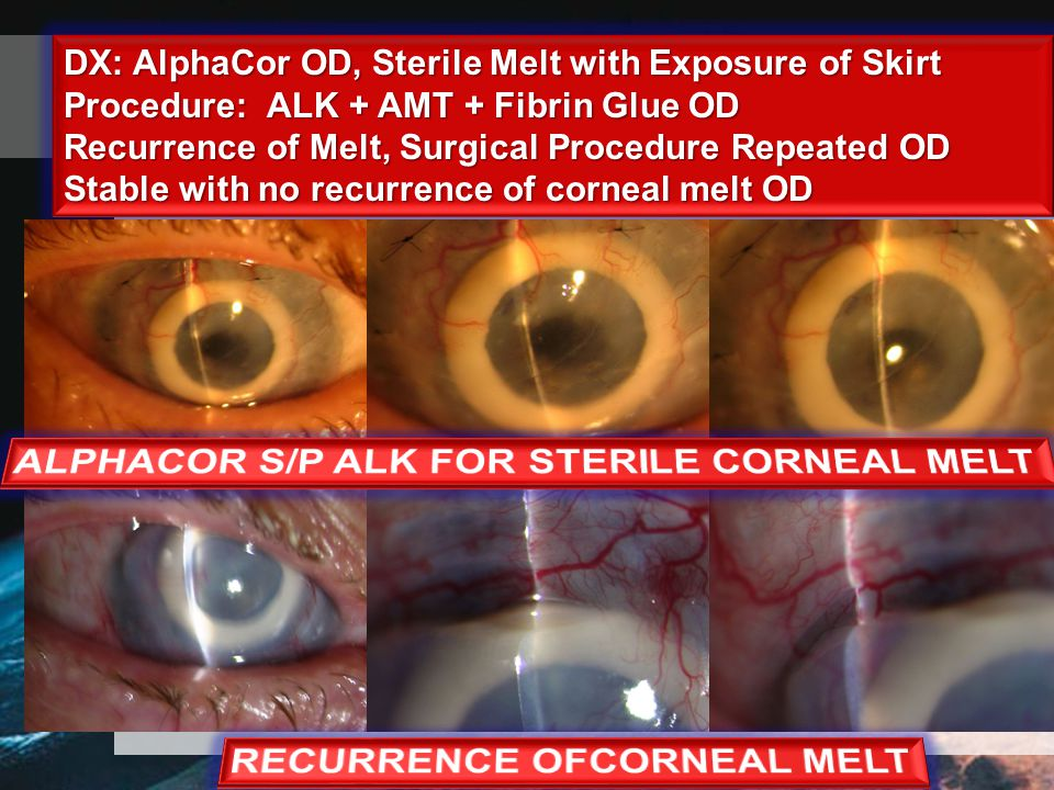 DX: AlphaCor OD, Sterile Melt with Exposure of Skirt Procedure: ALK + AMT + Fibrin Glue OD Recurrence of Melt, Surgical Procedure Repeated OD Stable with no recurrence of corneal melt OD