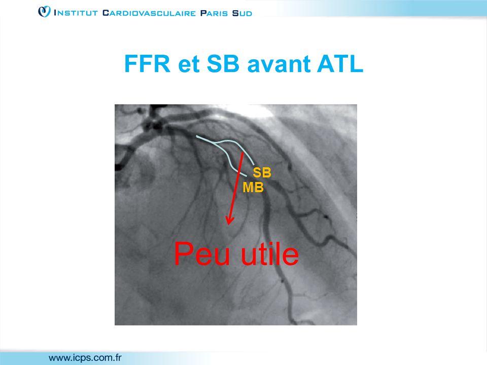FFR et SB avant ATL MB SB Peu utile