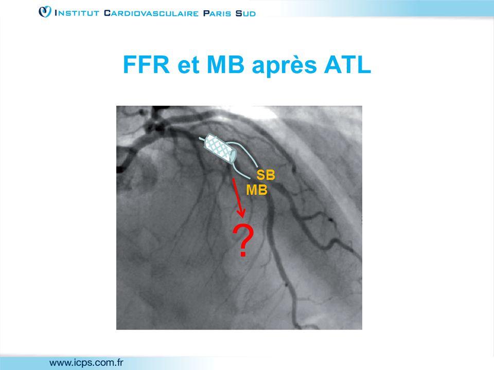 FFR et MB après ATL MB SB