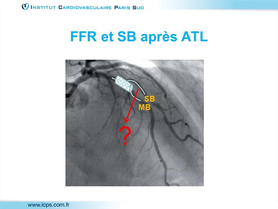 FFR et SB après ATL MB SB