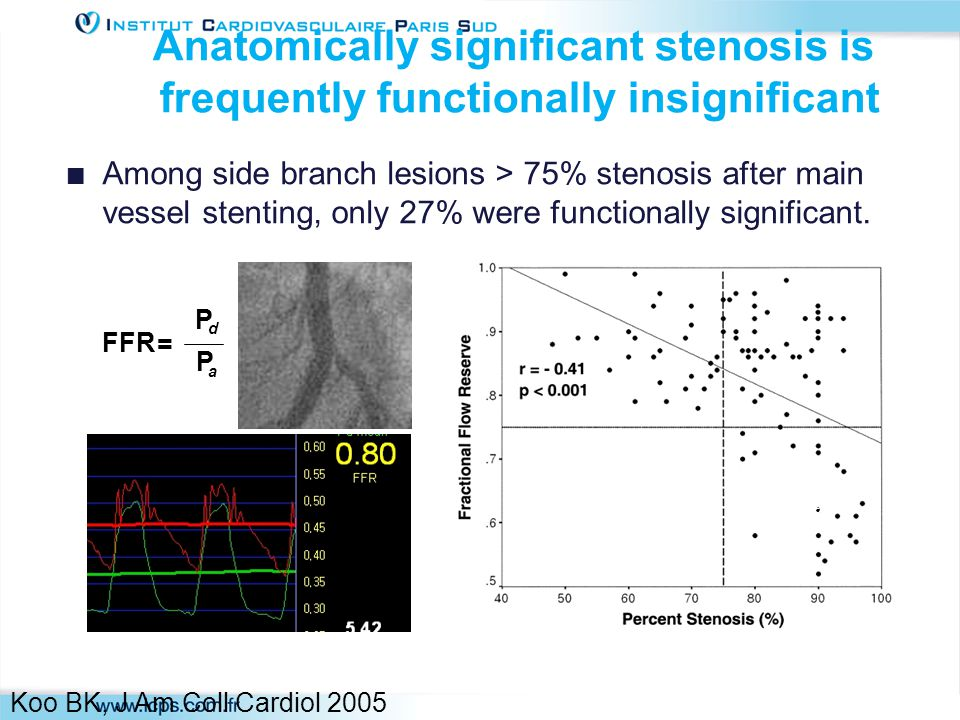 Anatomically significant stenosis is frequently functionally insignificant Among side branch lesions > 75% stenosis after main vessel stenting, only 27% were functionally significant.