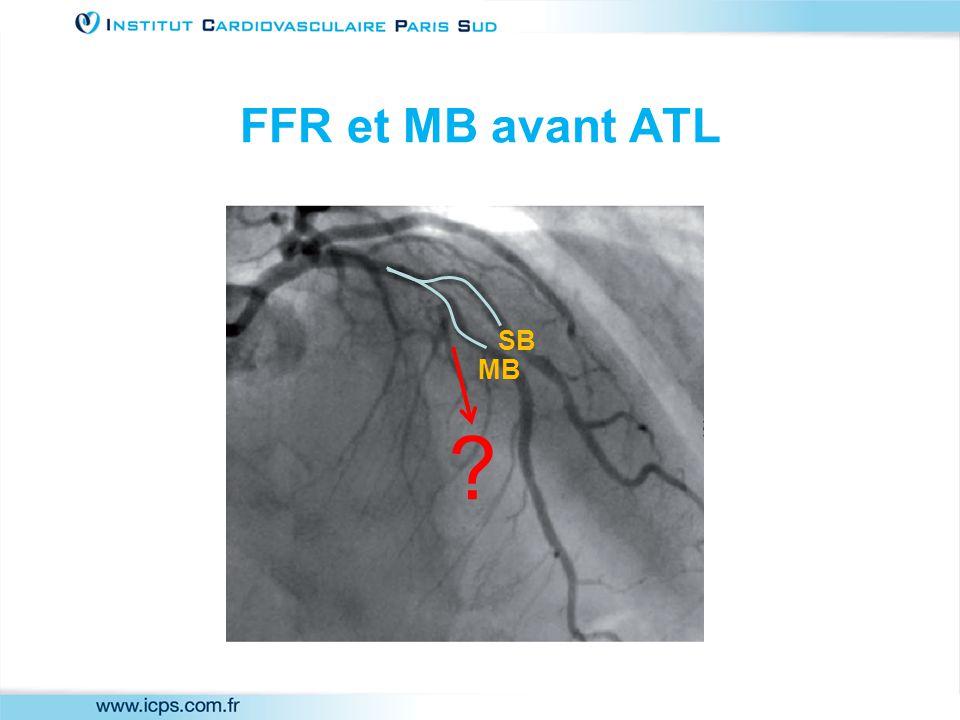 FFR et MB avant ATL MB SB
