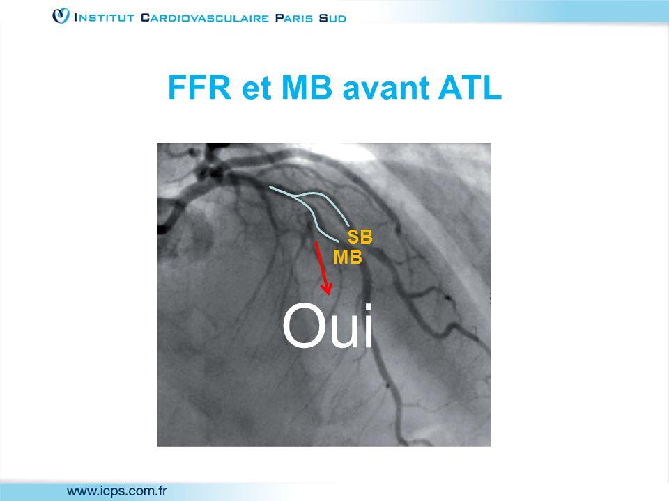 FFR et MB avant ATL MB SB Oui