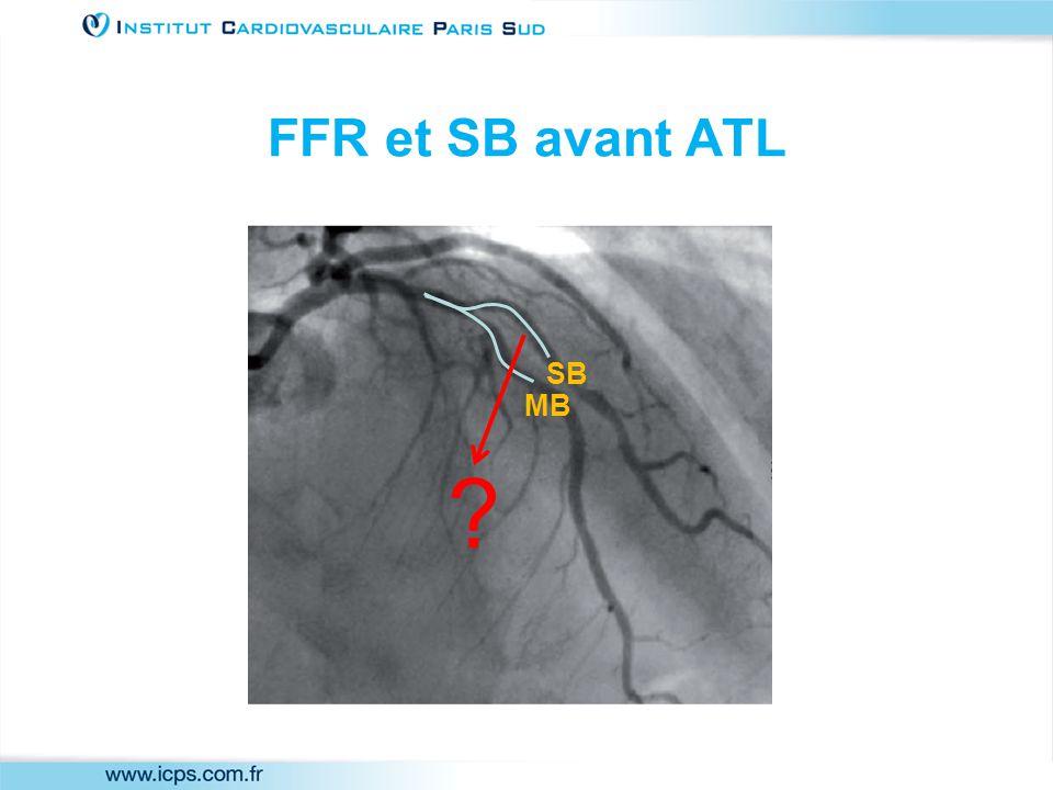 FFR et SB avant ATL MB SB