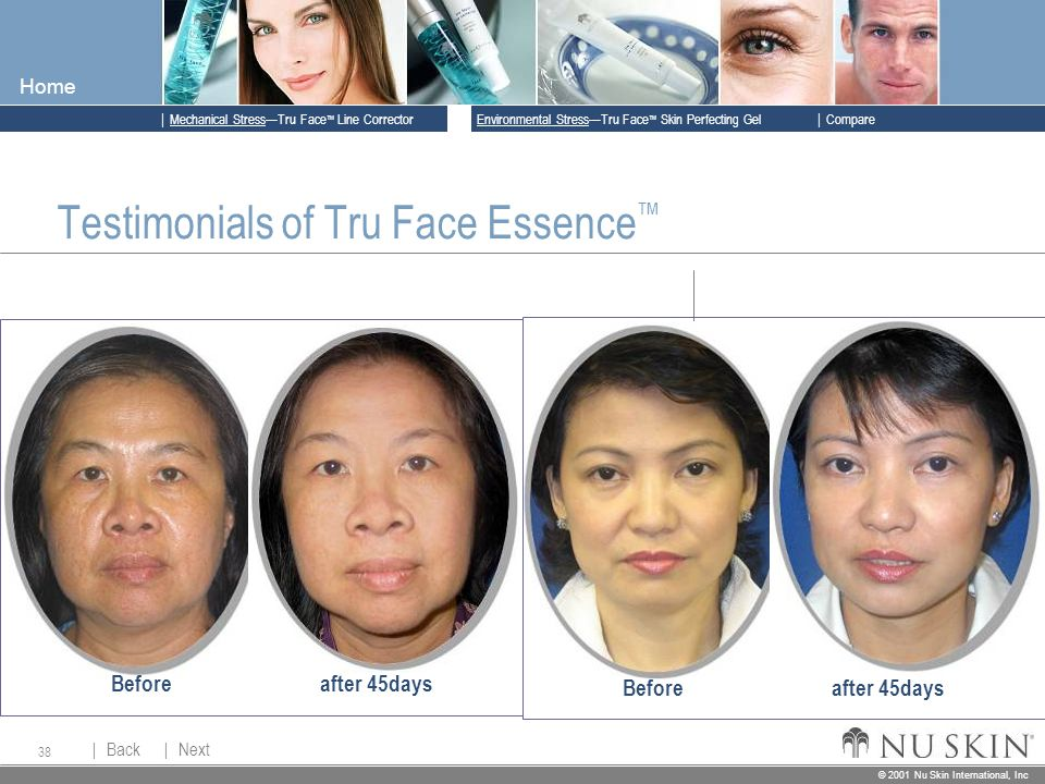 © 2001 Nu Skin International, Inc  Mechanical Stress—Tru Face ™ Line Corrector  Back Back  Next Next © 2001 Nu Skin International, Inc  Environmental Stress—Tru Face ™ Skin Perfecting Gel  Compare Home 38 Testimonials of Tru Face Essence ™ Beforeafter 45days