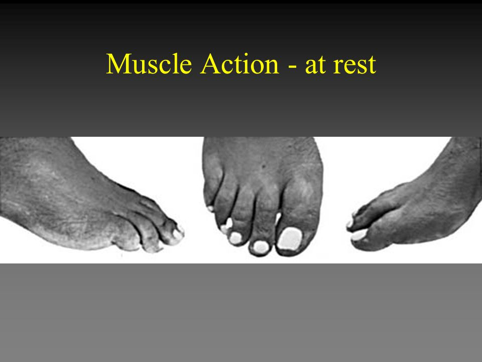 Muscle Action - at rest