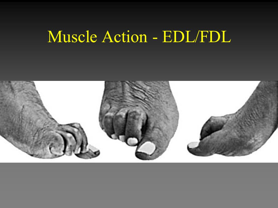 Muscle Action - EDL/FDL
