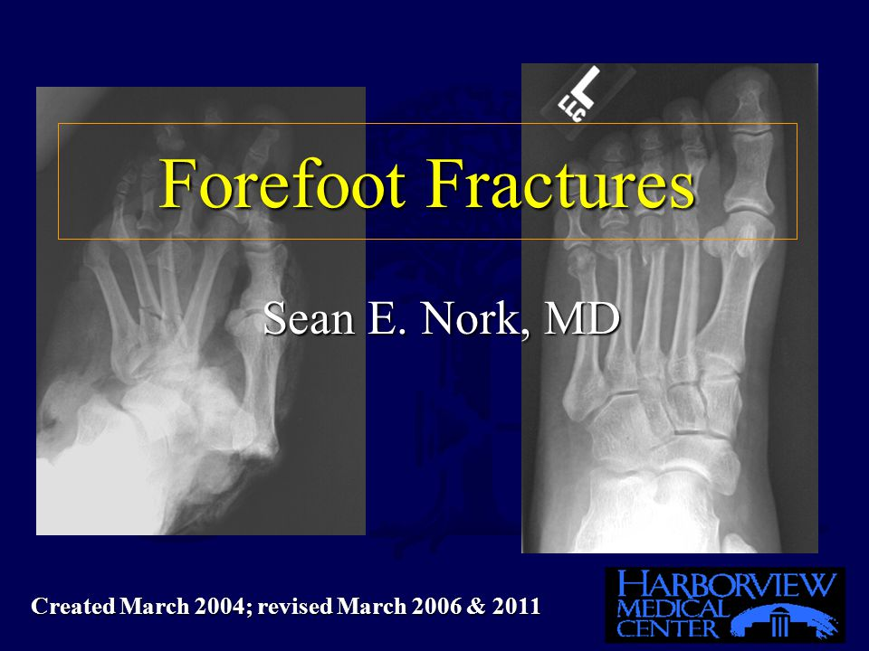 Forefoot Fractures Sean E. Nork, MD Sean E. Nork, MD Created March 2004; revised March 2006 & 2011