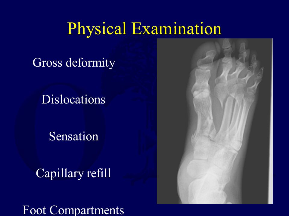 Physical Examination Gross deformity Dislocations Sensation Capillary refill Foot Compartments