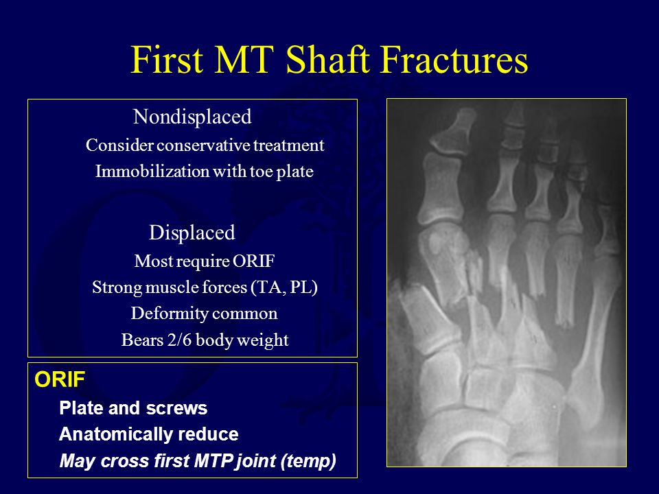 First MT Shaft Fractures Nondisplaced Consider conservative treatment Immobilization with toe plate Displaced Most require ORIF Strong muscle forces (