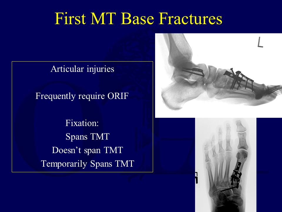 First MT Base Fractures Articular injuries Frequently require ORIF Fixation: Spans TMT Doesn't span TMT Temporarily Spans TMT