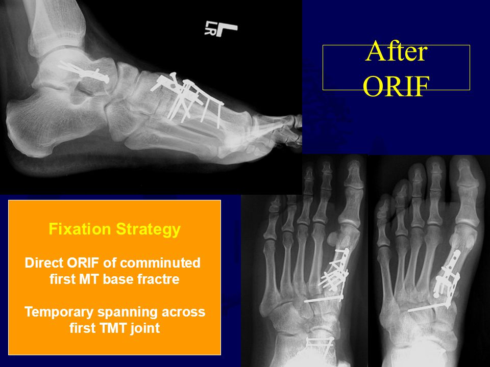 After ORIF Fixation Strategy Direct ORIF of comminuted first MT base fractre Temporary spanning across first TMT joint
