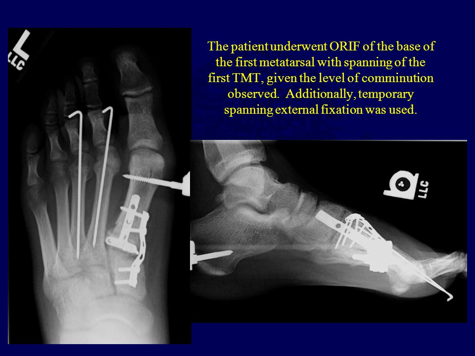 The patient underwent ORIF of the base of the first metatarsal with spanning of the first TMT, given the level of comminution observed. Additionally,