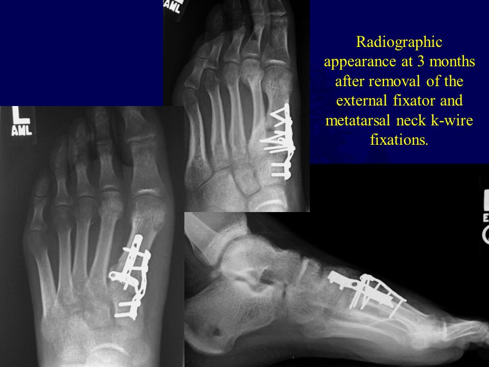 Radiographic appearance at 3 months after removal of the external fixator and metatarsal neck k-wire fixations.