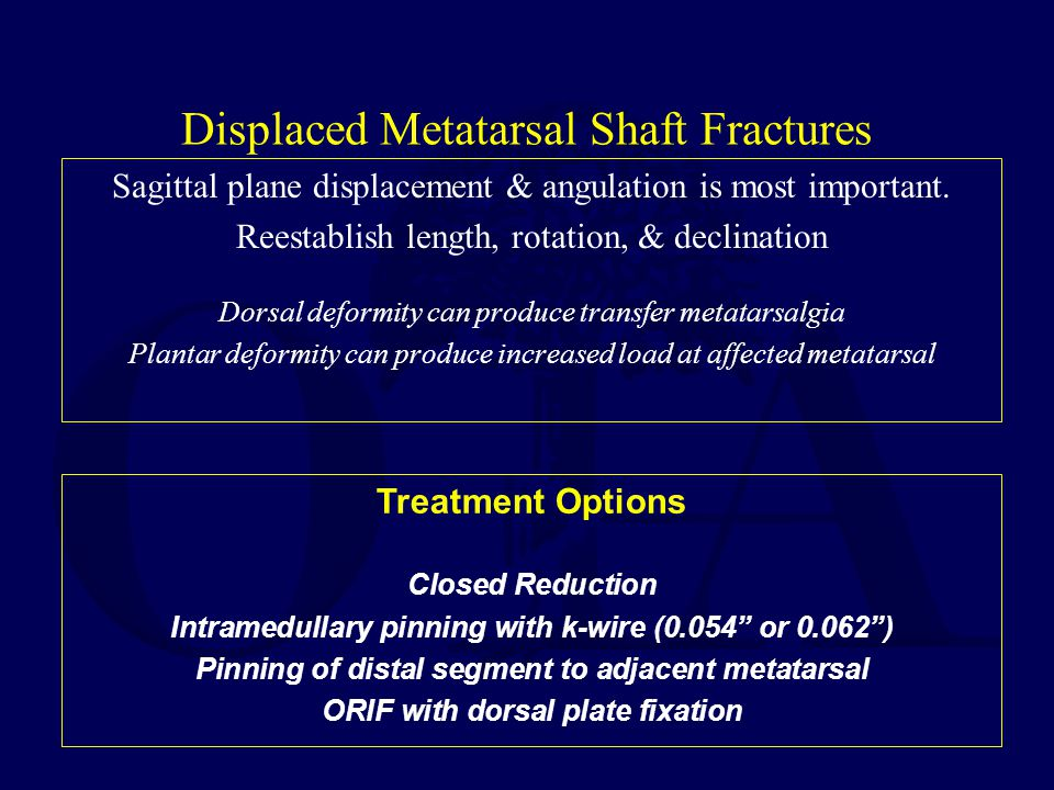 Displaced Metatarsal Shaft Fractures Sagittal plane displacement & angulation is most important. Reestablish length, rotation, & declination Dorsal de