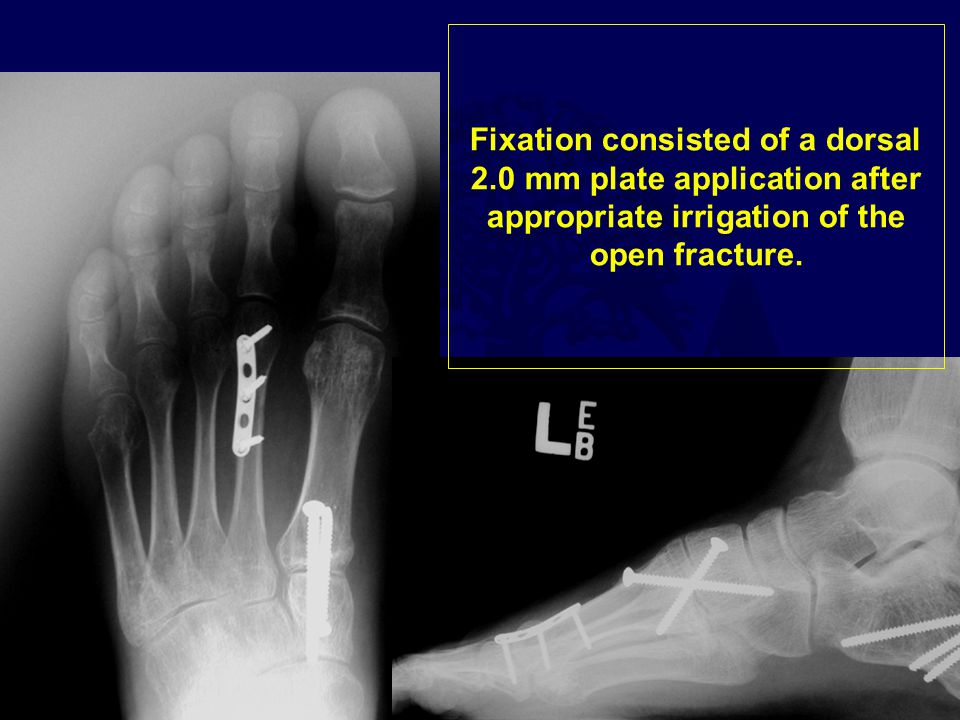 Fixation consisted of a dorsal 2.0 mm plate application after appropriate irrigation of the open fracture.