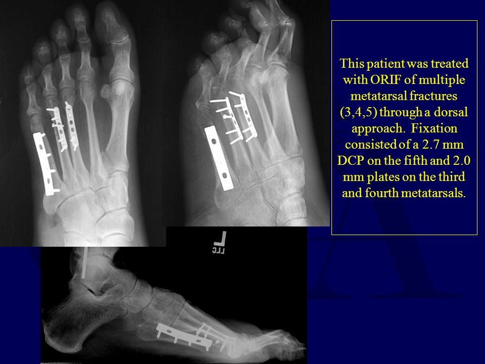 This patient was treated with ORIF of multiple metatarsal fractures (3,4,5) through a dorsal approach. Fixation consisted of a 2.7 mm DCP on the fifth