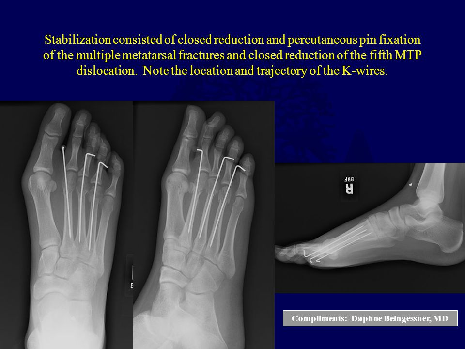 Compliments: Daphne Beingessner, MD Stabilization consisted of closed reduction and percutaneous pin fixation of the multiple metatarsal fractures and