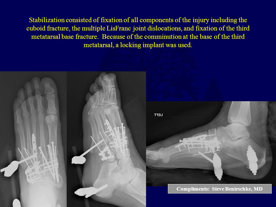Compliments: Steve Benirschke, MD Stabilization consisted of fixation of all components of the injury including the cuboid fracture, the multiple LisF