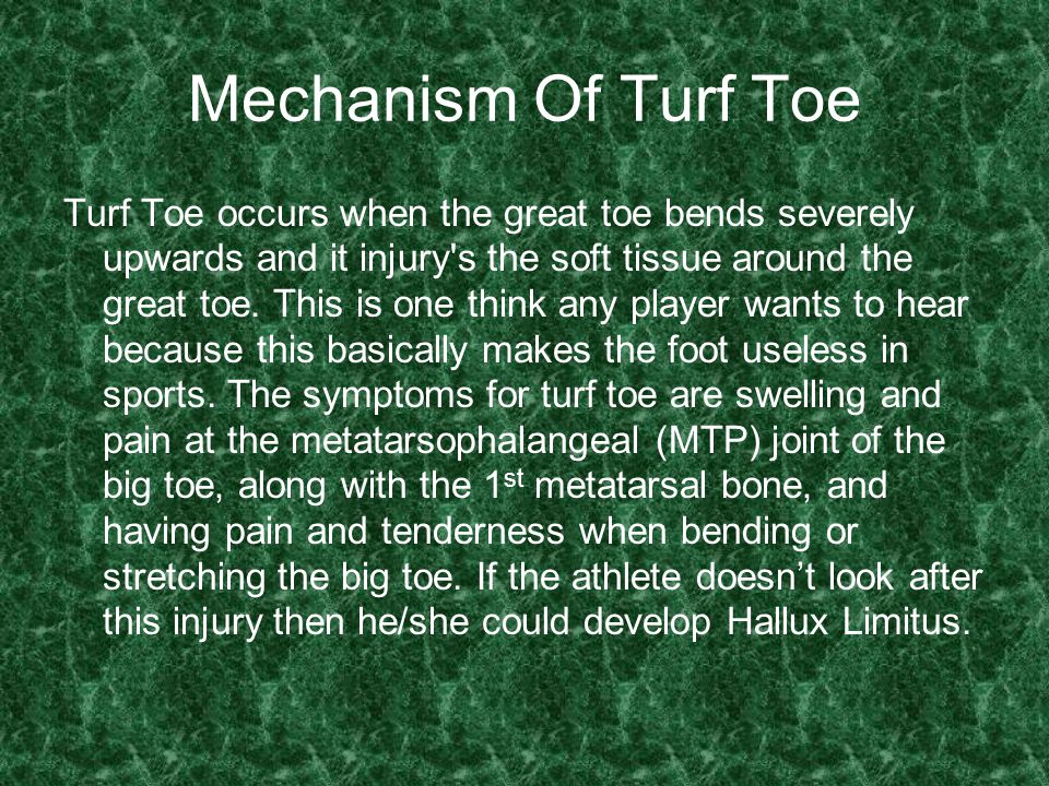 Mechanism Of Turf Toe Turf Toe occurs when the great toe bends severely upwards and it injury s the soft tissue around the great toe.
