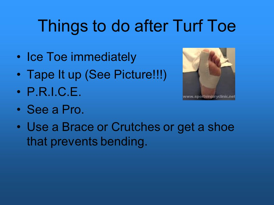 Things to do after Turf Toe Ice Toe immediately Tape It up (See Picture!!!) P.R.I.C.E. See a Pro. Use a Brace or Crutches or get a shoe that prevents