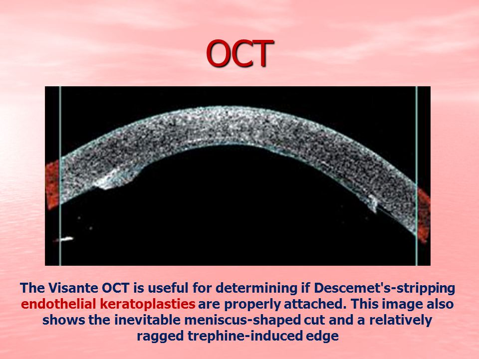 OCT The Visante OCT is useful for determining if Descemet's-stripping endothelial keratoplasties are properly attached. This image also shows the inev