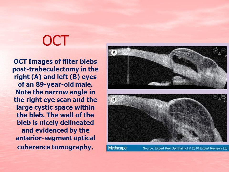 OCT OCT Images of filter blebs post-trabeculectomy in the right (A) and left (B) eyes of an 89-year-old male. Note the narrow angle in the right eye s