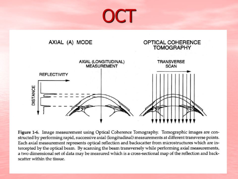 corneal decompensation due to peripheral tube-corneal touch was improved by OCT OCT image ruled out corneal tube contact