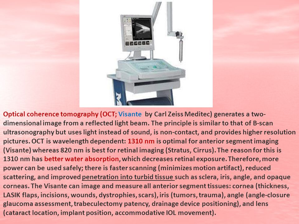 Optical coherence tomography (OCT; Visante by Carl Zeiss Meditec) generates a two- dimensional image from a reflected light beam. The principle is sim