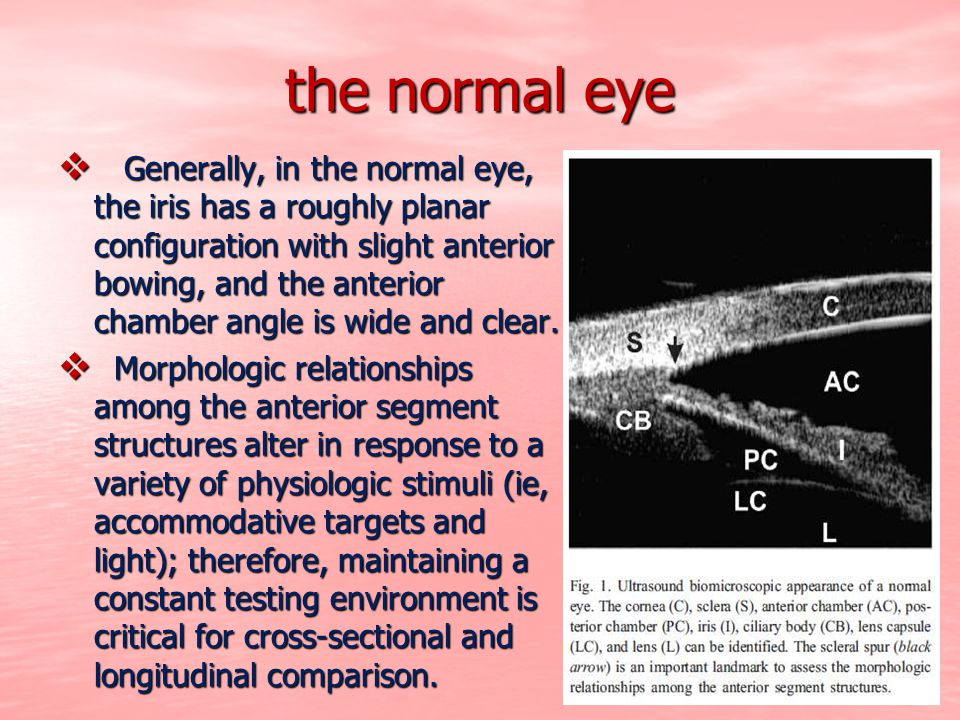 the normal eye  Generally, in the normal eye, the iris has a roughly planar configuration with slight anterior bowing, and the anterior chamber angle