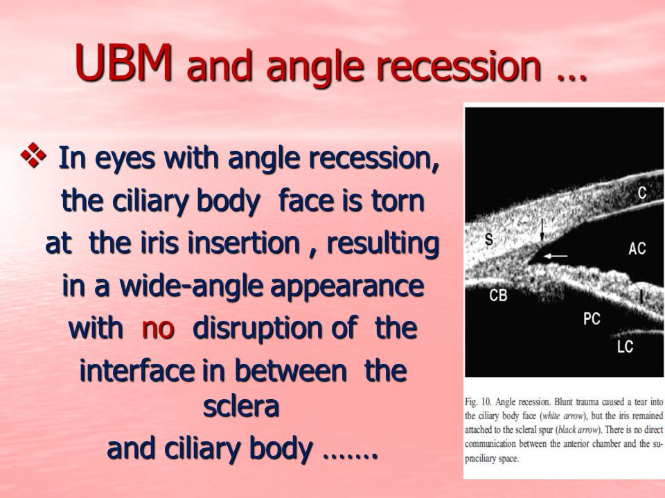 UBM and angle recession …  In eyes with angle recession, the ciliary body face is torn the ciliary body face is torn at the iris insertion, resulting