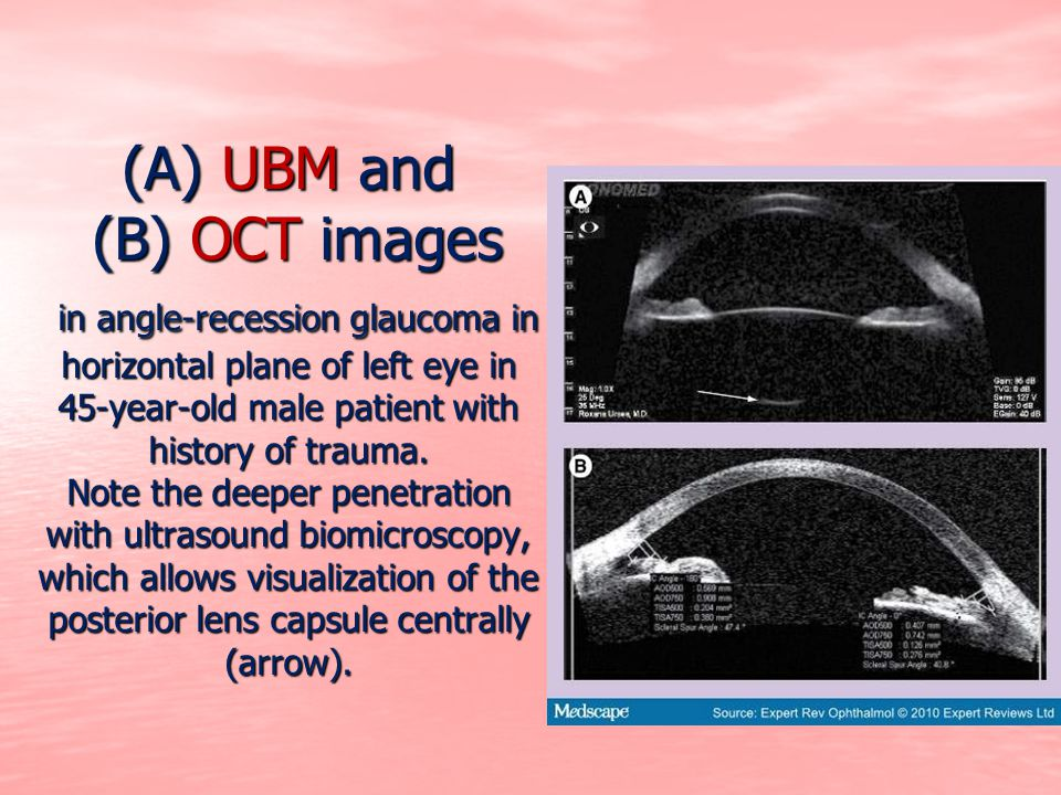 (A) UBM and (B) OCT images in angle-recession glaucoma in horizontal plane of left eye in 45-year-old male patient with history of trauma. Note the de