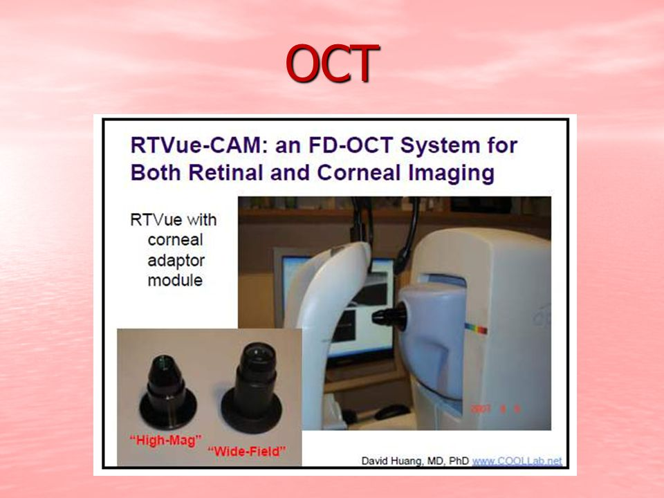 UBM  Ultrasound biomicroscopy is helpful in differentiating solid (B) from cystic (A) lesions of the iris and ciliarybody  The size of these lesions can be measured, and the extent to which they invade the iris root and ciliary face can be evaluated.