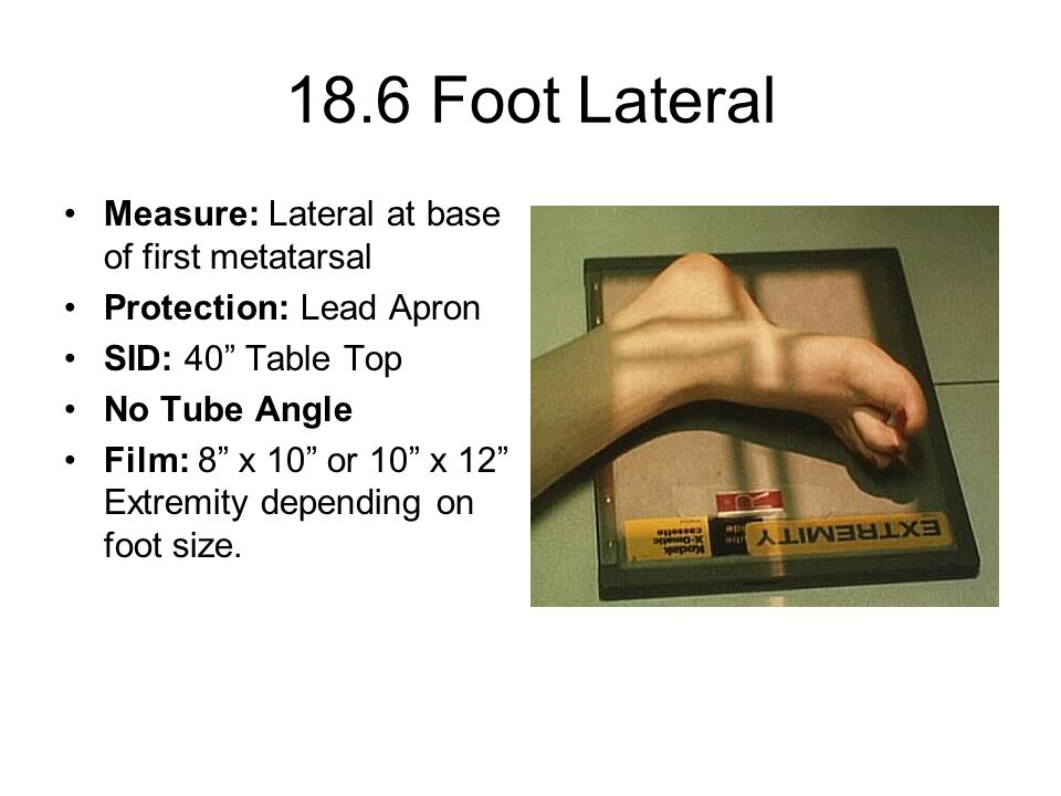 """18.6 Foot Lateral Measure: Lateral at base of first metatarsal Protection: Lead Apron SID: 40"""" Table Top No Tube Angle Film: 8"""" x 10"""" or 10"""" x 12"""" Ext"""