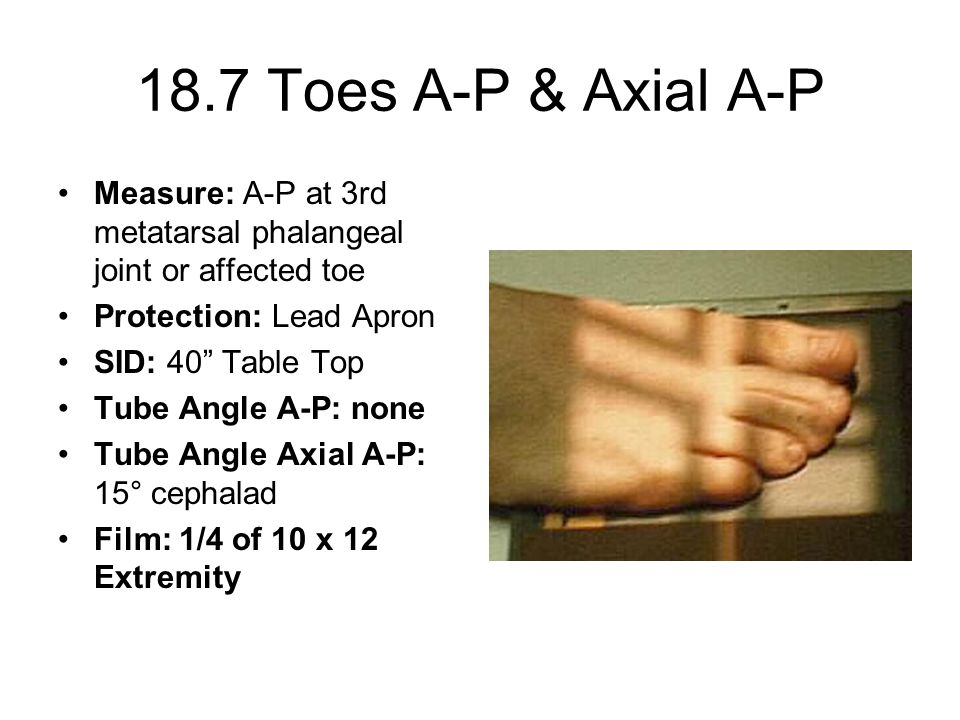 18.7 Toes A-P & Axial A-P Measure: A-P at 3rd metatarsal phalangeal joint or affected toe Protection: Lead Apron SID: 40 Table Top Tube Angle A-P: none Tube Angle Axial A-P: 15° cephalad Film: 1/4 of 10 x 12 Extremity