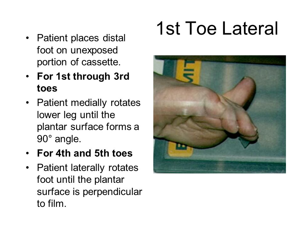 1st Toe Lateral Patient places distal foot on unexposed portion of cassette.