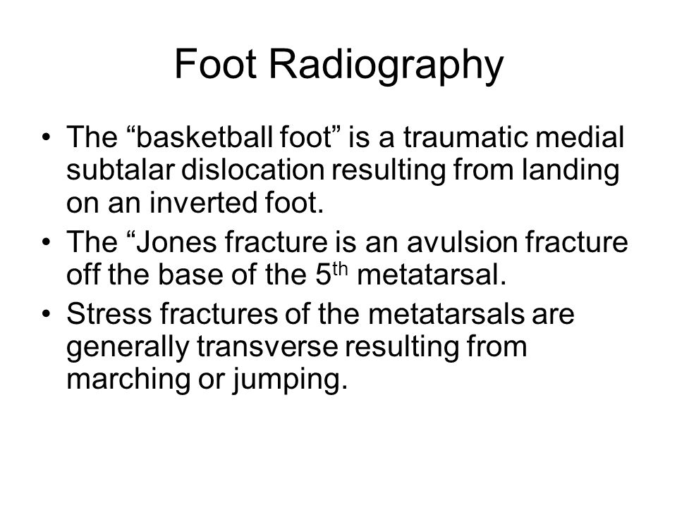 Foot Radiography The basketball foot is a traumatic medial subtalar dislocation resulting from landing on an inverted foot.